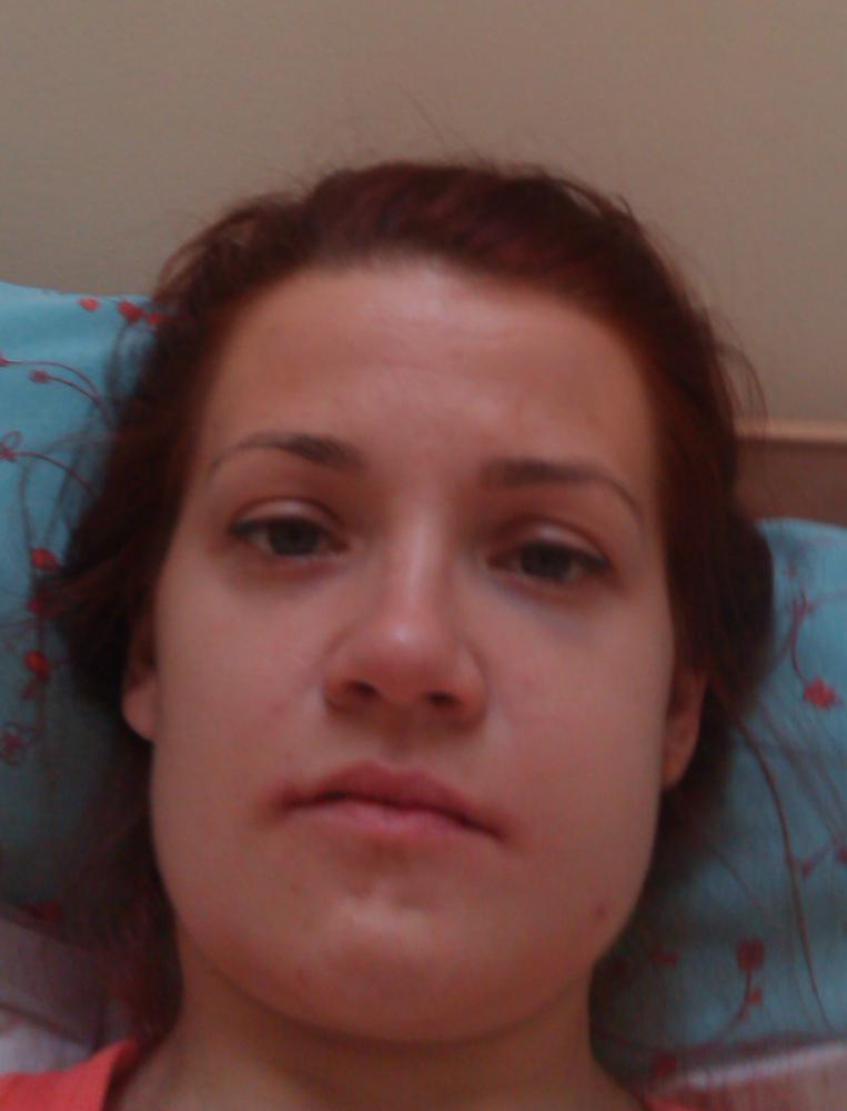 Как сделать синяк на лице без боли
