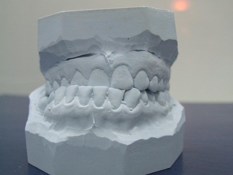 К чему приснился прозрачный зуб