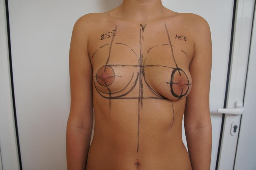 Левая грудь была значительно больше правой, при этом правая субмаммарная ск