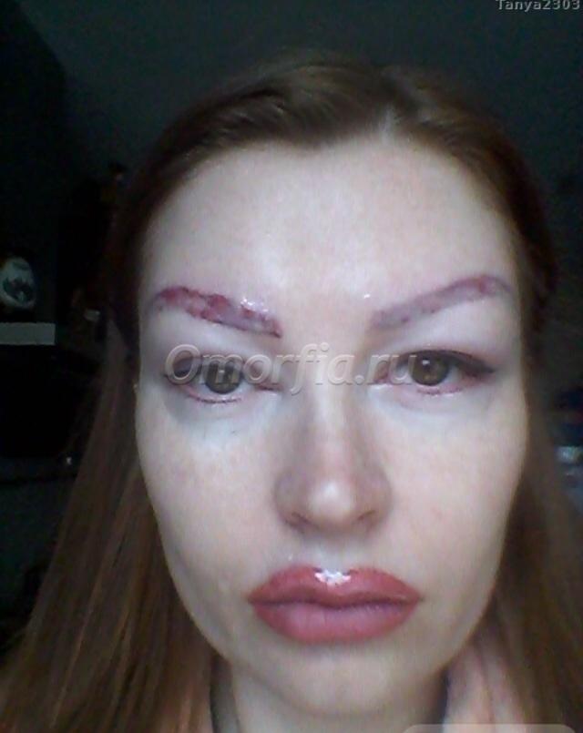 Перманентный макияж губ последствия
