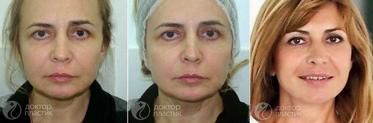 изменение лица при похудении фото