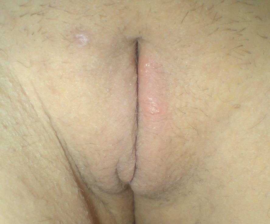 Фото огромных половых губ в мире 18 фотография