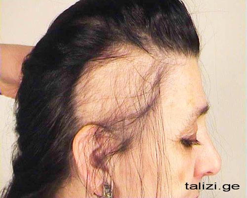 Www zdorovieinfo ru выпадение волос