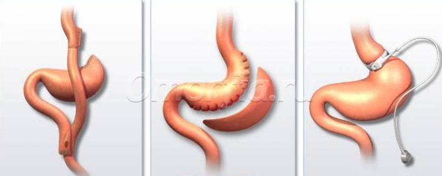 Бандажирование желудка красноярск