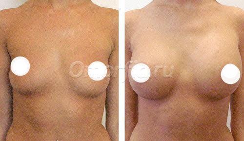 Жжение в груди после операции по увеличению груди
