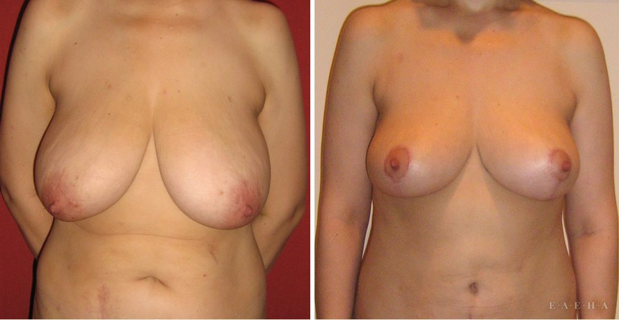 размера 2 фото грудь обвисшей