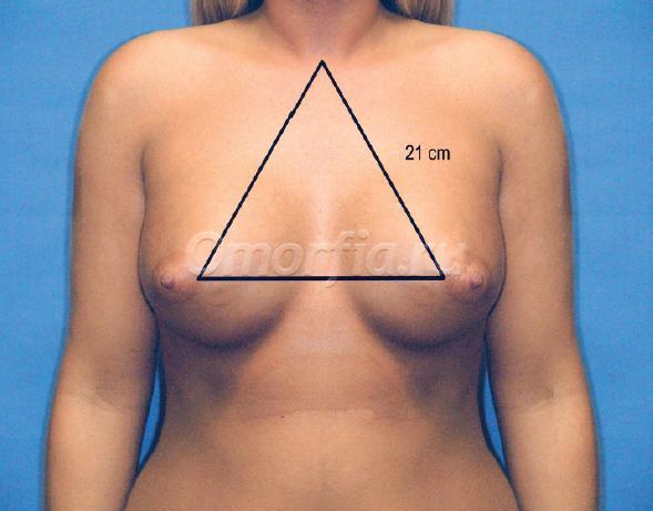 бесплатная участие акция увеличение груди ноябрь 2015