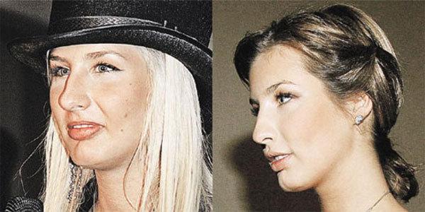 Кэти Топурия нос уменьшила и грудь увеличила.
