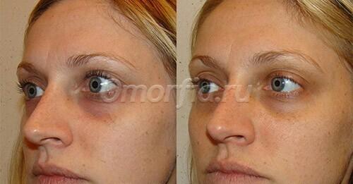 убрать синяки под глазами операция