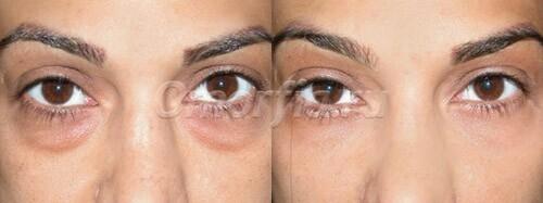 Синяки и темные круги под глазами: как от них избавиться - Блог ...