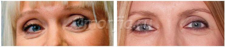 После блефаропластики на одном глазу нет эффектами