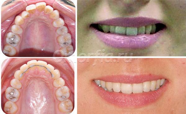 После удаления зуба как сместились зубы