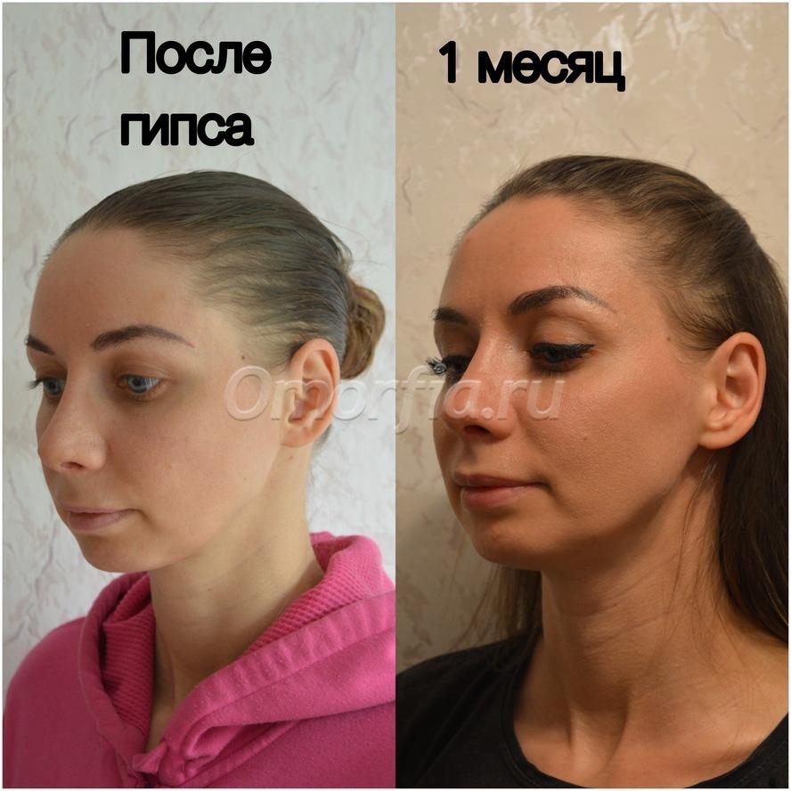 Накладывание полимерного гипса и бинтов в Москве  Клиника ЦРЧ