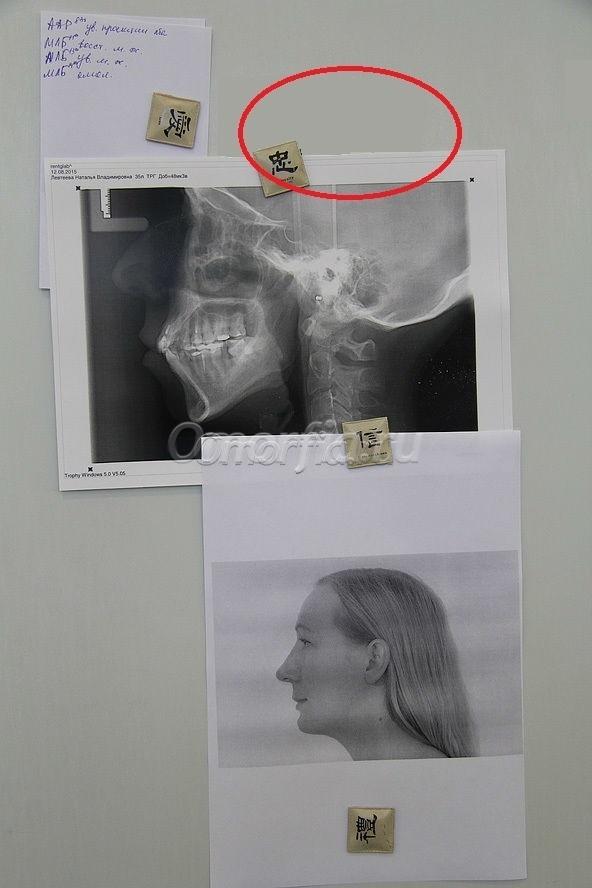 Ринопластика результаты фото
