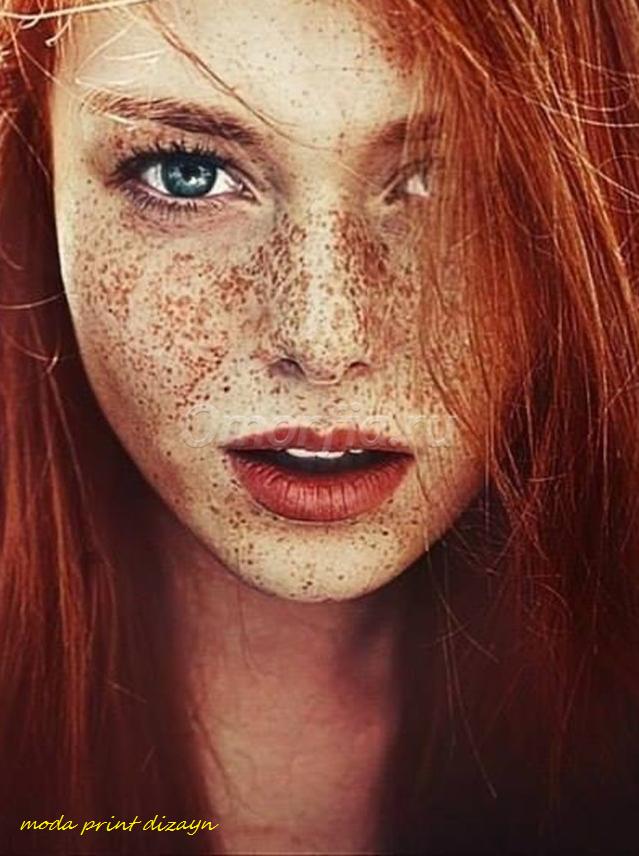 Пигментации на лице красные пятна