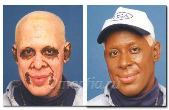 Смена цвета кожи