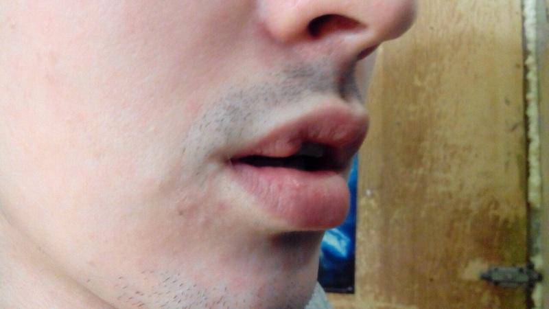 Зашили губу как лечить